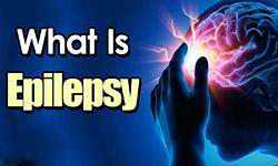 sta-je-epilepsija