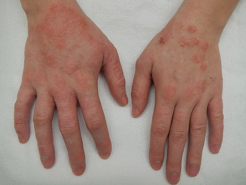 homeopatija u lečenju kožnih bolesti